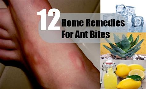 1000 ideas about ant bites on ant bites