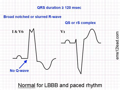 lbbb pattern ems 12 lead author at foam em rss page 11 of 25