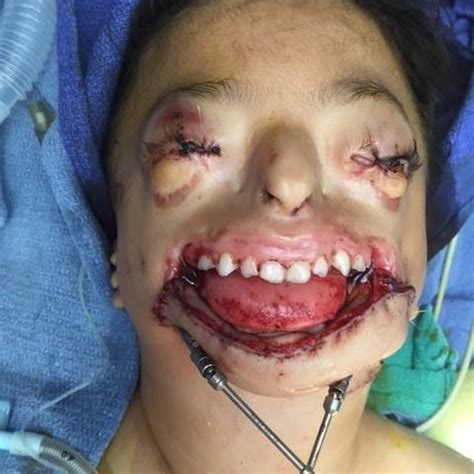 Passes Out In Bathroom Requires Plastic Surgery by Plastic Surgery Mission Houston Volunteering