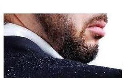 cuero cabelludo descamado rv system la caspa seca