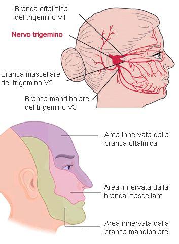 mal di testa sopra l occhio nevralgia trigemino