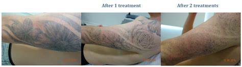 tattoo removal cost ga tattoo removal voucher c creek body art and tattoo