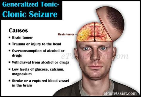 Detox Grand Mal Seizure by Generalized Tonic Clonic Seizure Or Grand Mal Seizure