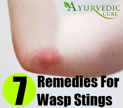 wasp sting home remedies treatments and cures