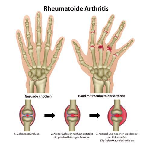 rheuma der inneren organe med facharztzentrum entz 252 ndlich rheumatische erkrankungen