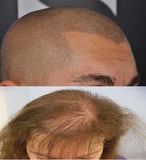 addio calvizie il libro della pgeditore i capelli addio calvizie l fda americana ha approvato un farmaco in grado di ripristinare la crescita