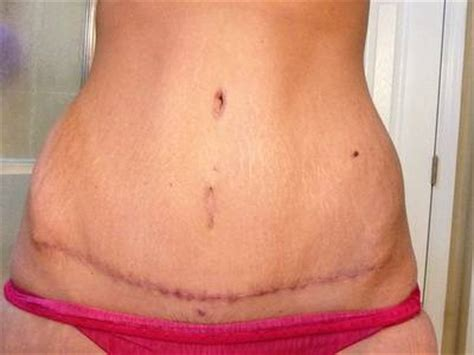 does insurance cover tummy tuck after c section top 5 things to consider when having an abdominoplasty
