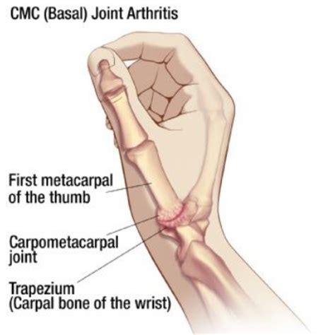 arthritis remedy treatment options for basal thumb arthritis how to treat basal thumb arthritis