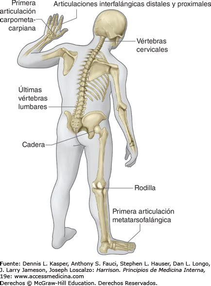 medicina interna mcgraw hill osteoartritis harrison principios de medicina interna