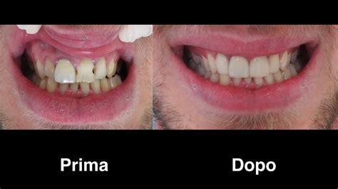 faccette  composito su incisivi sos turismo dentale