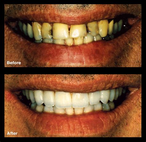 teeth discoloration treatment signature smiles gallery