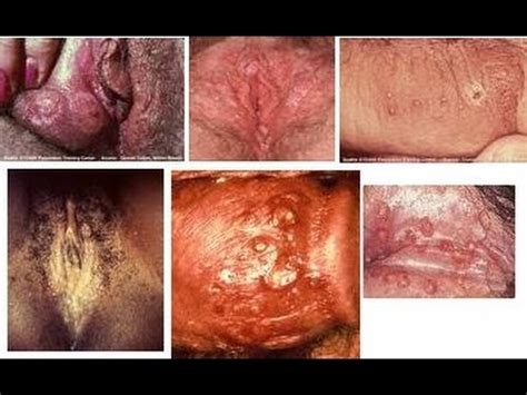 herpes pictures – beat herpes