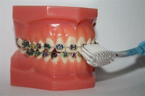 Tanden Polijsten Ortho by Orthodontie Gebitsgeluk
