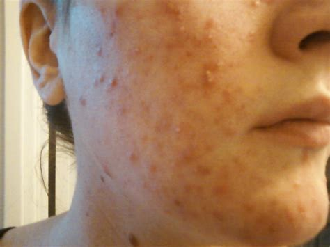 Vitamin Acne by Vitamin A Kur Bei Akne