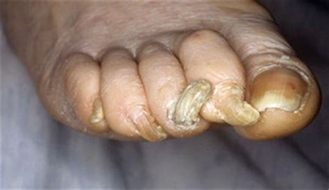 how to trim nails that are overgrown sclerosis research clinicspeak thinkhand who what onychogryphosis