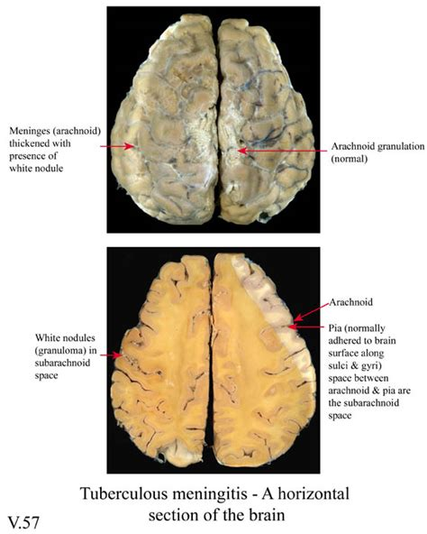 loss of appetite after c section tubercular meningitis