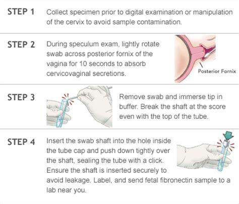 fetal fibronectin. causes, symptoms, treatment fetal