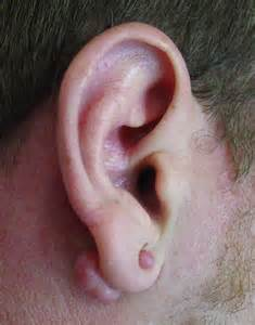 doctors gates keloids of the auricle