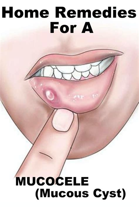 1000 images about healthy read on sore throat