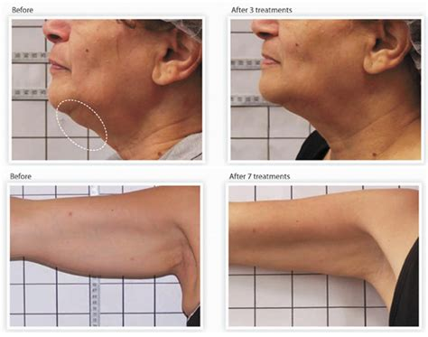 Saggy Solutions by Is And Sagging Skin Plaguing You South Florida
