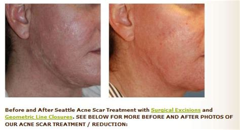 c section scar laser treatment scar revision scar revision before and after photos scar