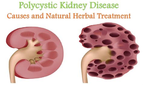 polycystic kidney disease causes and herbal treatment