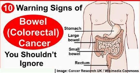 about cervical cancer newhairstylesformen2014 com 10 cancer symptoms that women shouldnt ignore 10 warning