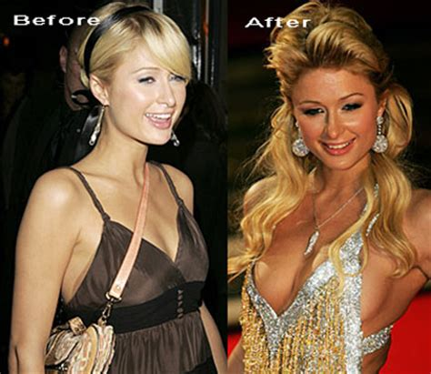 paris hilton job before and after plastic surgery