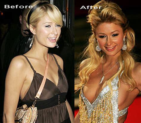 paris hilton job before and after plastic surgery