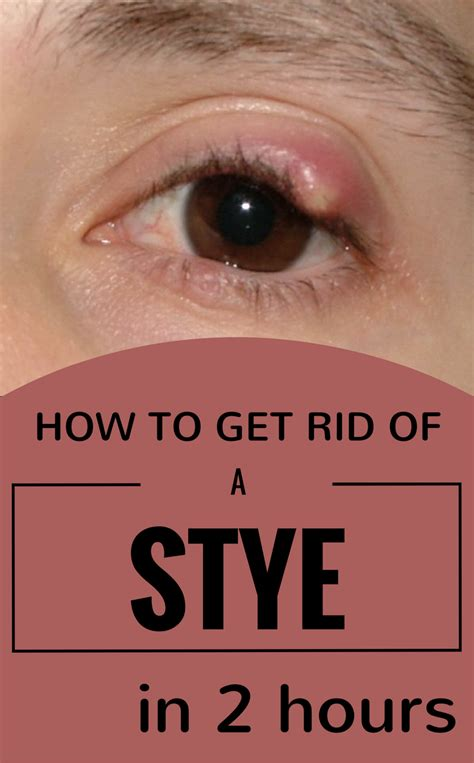 how to get my 2 how to get rid of a stye in 2 hours 101beautytips org