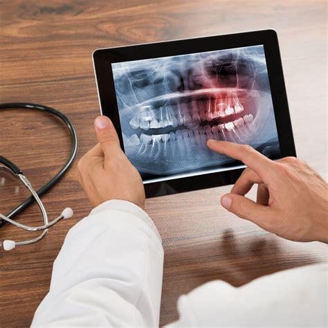 complete comfort dental complete comfort dental channahon il 60410