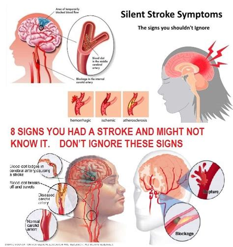 signs your had a stroke 1103 best images about brain facts on your brain neuroscience and brain facts