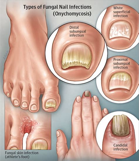Jama Acupuncture Detox by 240 Best Foot Toenail Clinic Images On