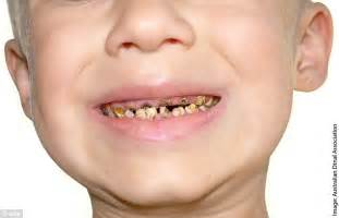 Sugary Drinks Are Causing The Teeth Of Australian Toddlers sugary drinks are causing the teeth of australian toddlers