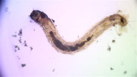 water worms in bathroom animal parasite seen from microscope stock footage video