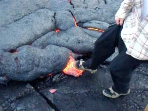 deaf lava boy must see this this my