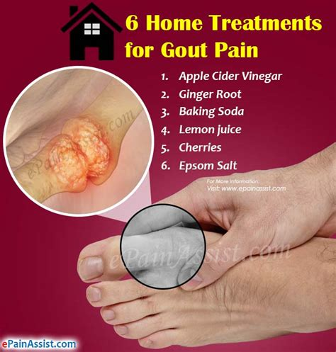 6 home treatments for gout