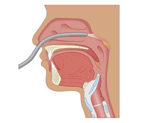 nose cross section cross section biomedical illustration of endoscopy of the