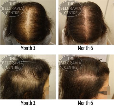 female pattern hair loss minoxidil treatment for diffuse hair loss aka chronic telogen effluvium
