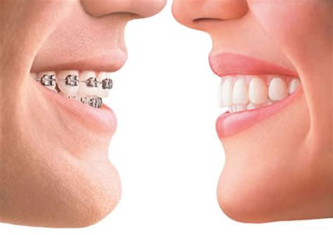 comfort dental care and orthodontics how orthodontic treatment works