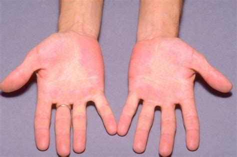 Relieve Burning Sensation In The And Palms With These Remedies And Personality Grooming by Erythromelalgia Nhs Uk