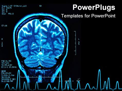 powerpoint templates brain magnetic resonance image mri of the brain powerpoint