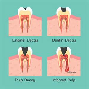 how to fix a cavity at home why should i fix a cavity that doesn t hurt