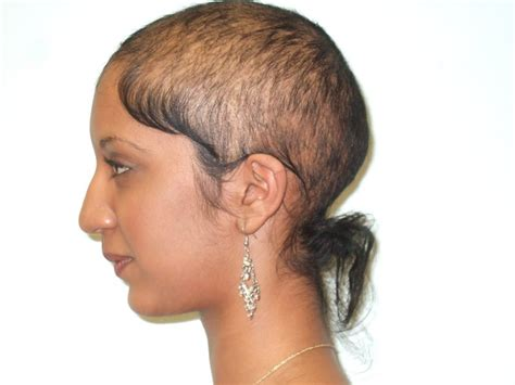special cuts for women with hairloss 5 best hair loss shoos for men and women
