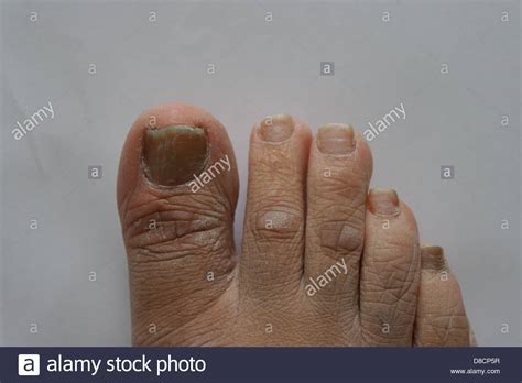 Fungal Infection In Nails Images