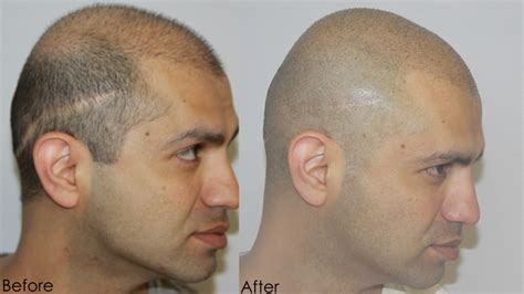 scalp micropigmentation in pakistan smp hair the best hair of 2018