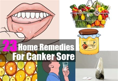 home remedies for canker sore treatments cure