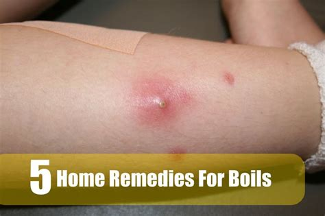5 best home remedies for boils health care