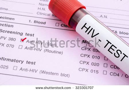 Tes Hiv Tester Hiv Hiv Tes Test Hiv Alat Tes Hiv Sendiri Di Rumah Terb 1 sle blood collection with hiv test label on hiv infection screening test form stock photo