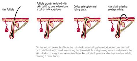 types of ingrown hair dermasphere ingrown hair